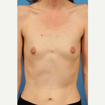 35-44 year old woman treated with Breast Implants before 3787021