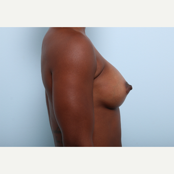 Breast Augmentation after 3345291