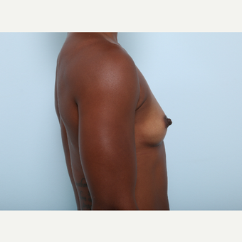 Breast Augmentation before 3345291
