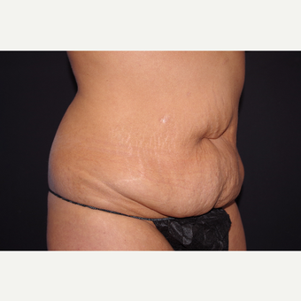 35-44 year old woman treated with Tummy Tuck before 3123670