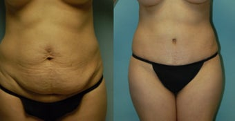44 year old woman seven months after gel breast augmentation, drainless tummy tuck and vaser. before 3261040