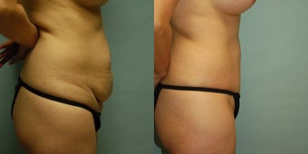 44 year old woman seven months after gel breast augmentation, drainless tummy tuck and vaser. after 3261040
