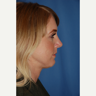 25-34 year old woman treated with Rhinoplasty after 3782010