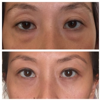 Young Asian woman who underwent lower blepharoplasty (eye bags surgery) before 2235477