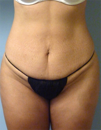 Tummy Tuck - 44 Year Old  before 1371051