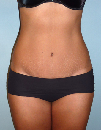 Tummy Tuck - 44 Year Old  after 1371051