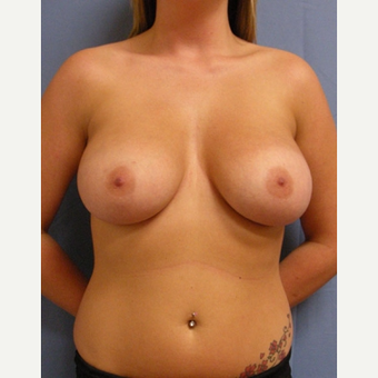 25-34 year old woman treated with Breast Augmentation before 3529706