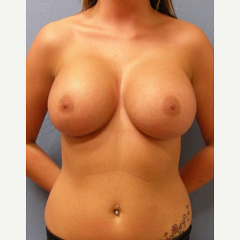 25-34 year old woman treated with Breast Augmentation after 3529706
