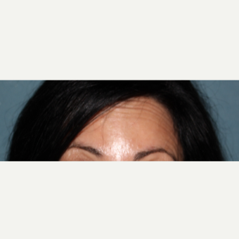 45-54 year old woman treated with 16 units of Botox after 3185646