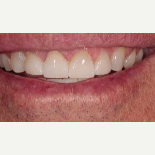 45-54 year old man treated with Porcelain Veneers after 3488838