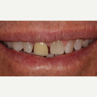45-54 year old man treated with Porcelain Veneers before 3488838