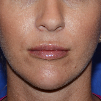 25-34 year old woman treated with Lip Augmentation after 3500589