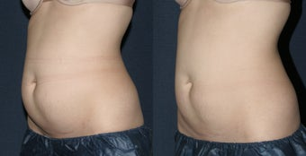 Before & After CoolSculpting before 678453