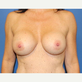 35-44 year old woman treated with Breast Implant Revision after 3652534