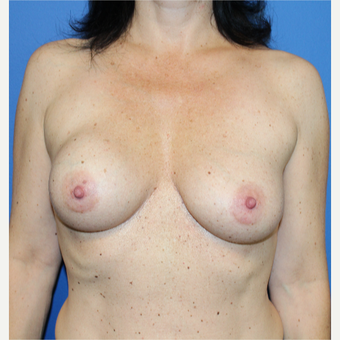 35-44 year old woman treated with Breast Implant Revision before 3652534