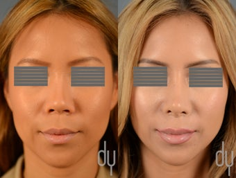 Before After Asian Rhinoplasty with Rib Cartilage Harvest and Diced Cartilage Fascia (DCF)