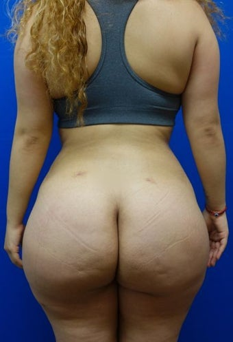 Brazilian Butt Lift after 1137930