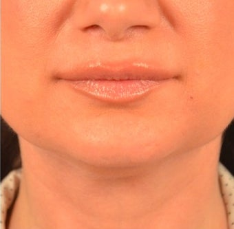 45-54 year old woman treated with Kybella after 2095842