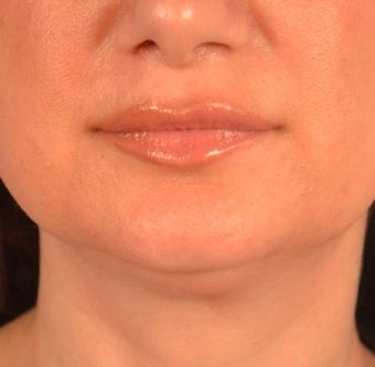 45-54 year old woman treated with Kybella before 2095842