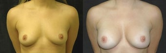 27 year old woman treated with Breast Augmentation before 2990462