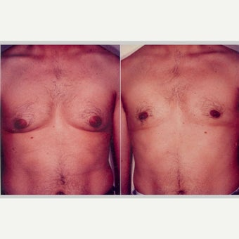 25-34 year old man treated with Breast Reduction