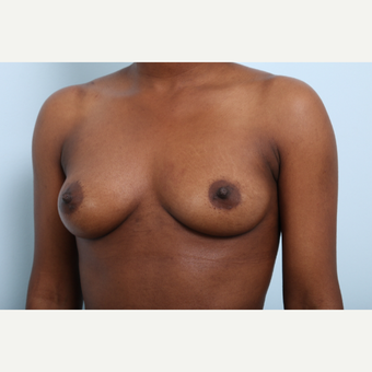 Breast Augmentation before 3425254