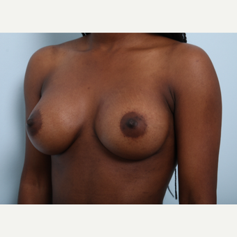 Breast Augmentation after 3425254