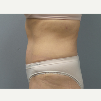 45-54 year old woman treated with Tummy Tuck after 3325460