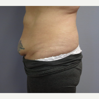 45-54 year old woman treated with Tummy Tuck before 3325460