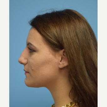 18-24 year old woman treated with Rhinoplasty before 3482872