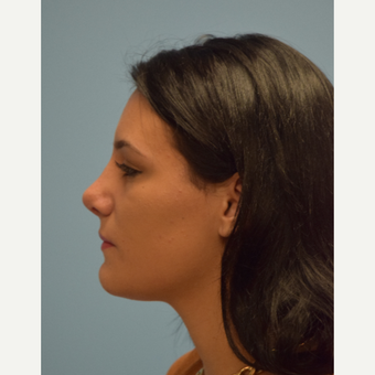 18-24 year old woman treated with Rhinoplasty after 3482872