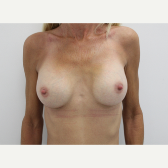 45-54 year old woman treated with Breast Augmentation after 3060189