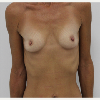 45-54 year old woman treated with Breast Augmentation before 3060189