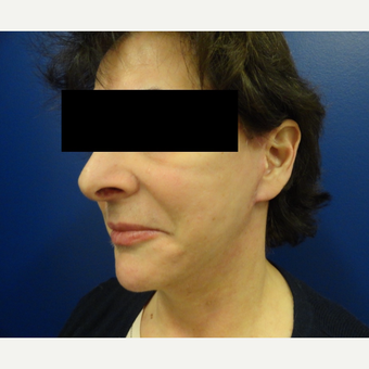 55-64 year old woman treated with Facelift after 3225050