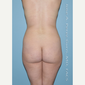 18-24 year old woman treated with Brazilian Butt Lift before 3056474