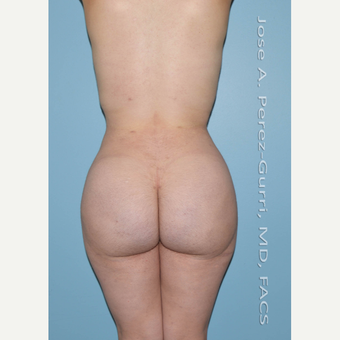 18-24 year old woman treated with Brazilian Butt Lift after 3056474
