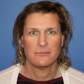 45-54 year old male treated with Facial Feminization Surgery before 2841515