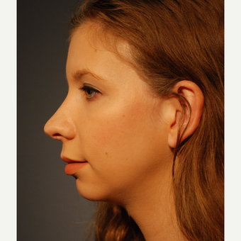 18-24 year old woman treated with Rhinoplasty after 3064878