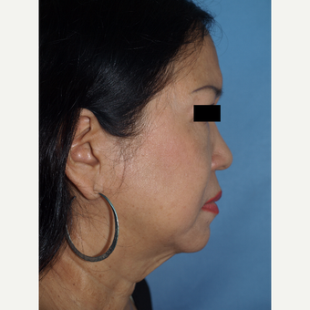 55-64 year old woman treated with Facelift and Fat Transfers to Face before 3194305