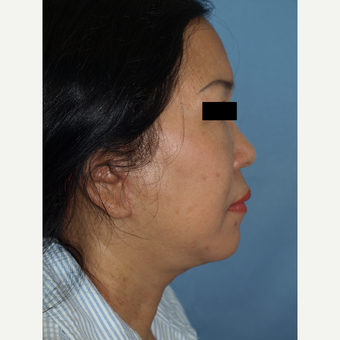 55-64 year old woman treated with Facelift and Fat Transfers to Face after 3194305