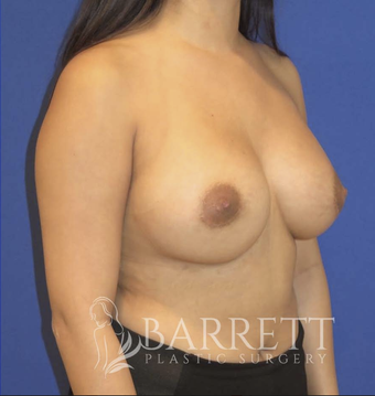25-34 year old woman treated with Breast Augmentation 2623043