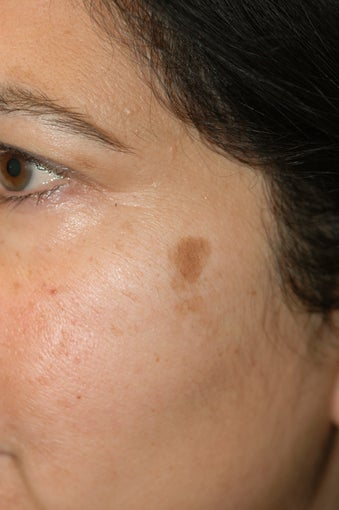 Los Angeles Age Spot Removal before 1134357