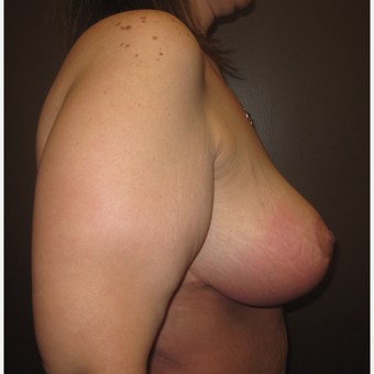 35-44 year old woman treated with Breast Lift after 3321058