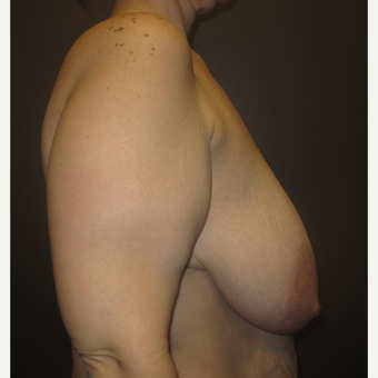 35-44 year old woman treated with Breast Lift before 3321058