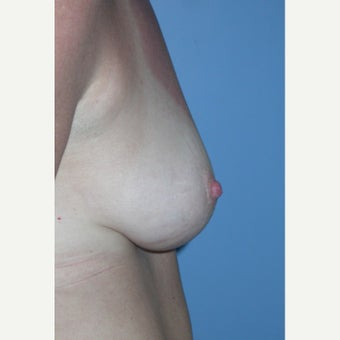 35-44 year old woman treated with Nipple Surgery 1609648