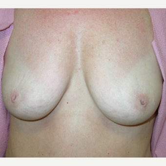 35-44 year old woman treated with Nipple Surgery before 1609648