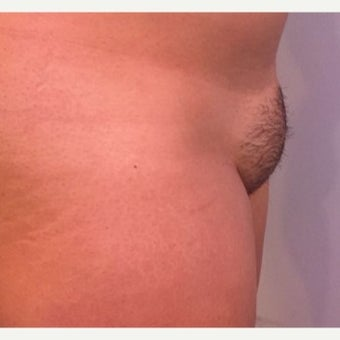 25-34 year old woman treated with Tumescent Liposuction before 2573744