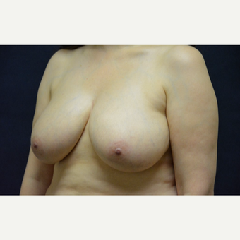 45-54 year old woman treated with Breast Lift before 3467210