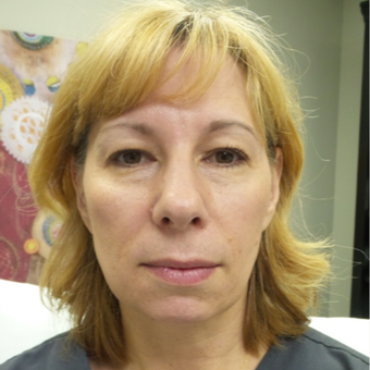 45-54 year old woman treated with Voluma before 3440489