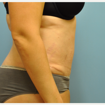 33 year old woman treated with Tummy Tuck after 3583971
